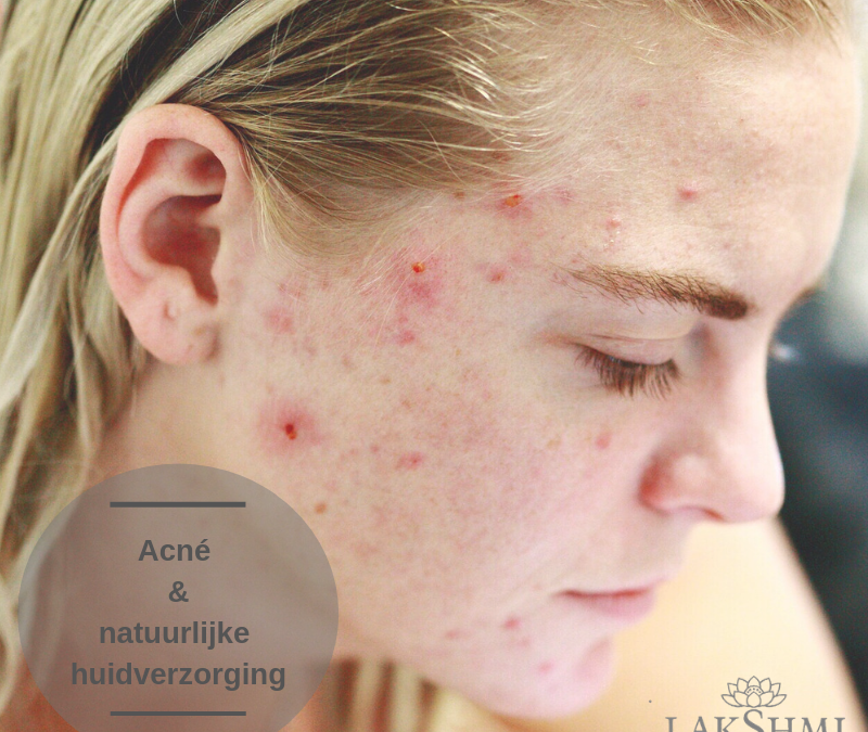 Kapha huid – Acné – Onzuivere huid